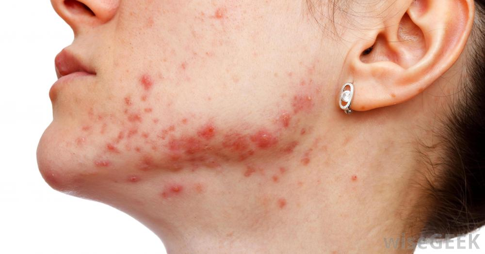 What Is Nodulocystic Acne