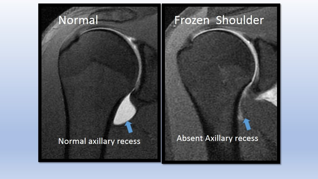 Frozen Shoulder Cross Section