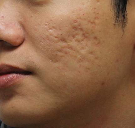 Guide to Acne Scar Treatment and Skin Damage 2
