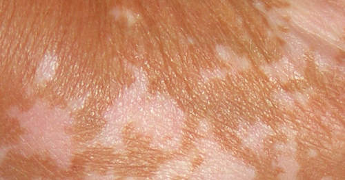 Home Remedies For Remove White Sunspots On Skin2