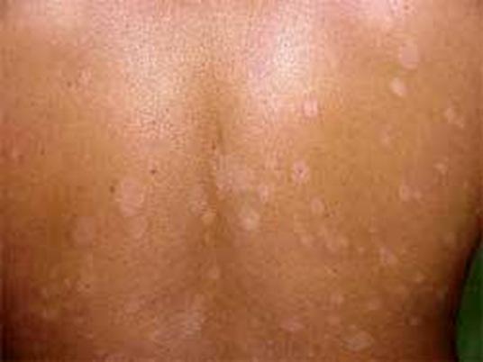 White sunspots on skin