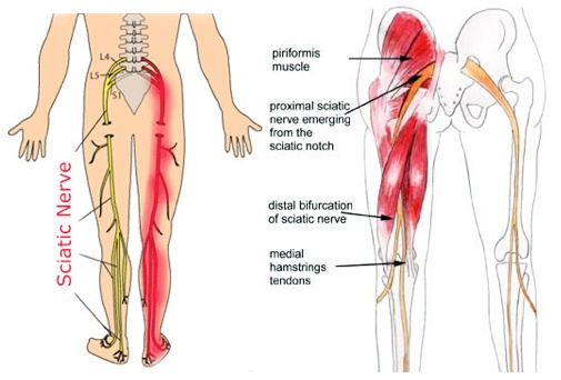 Causes of Sciatica Pain