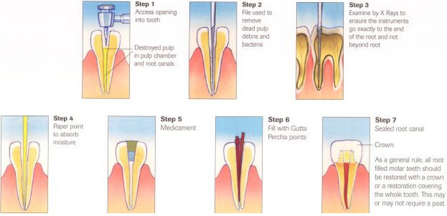 Dental Root Canal Procedure