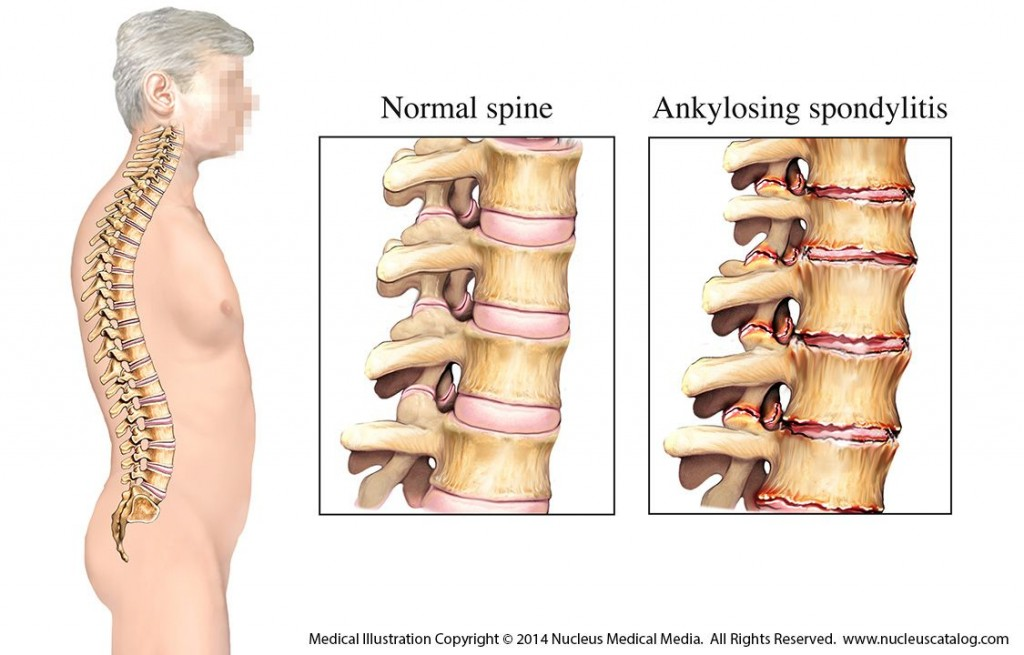 Ankylosing Spondylitis Cross Section