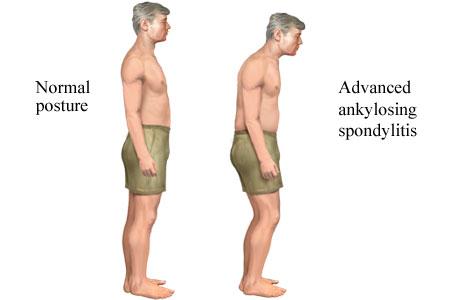 Ankylosing Spondylitis Posture