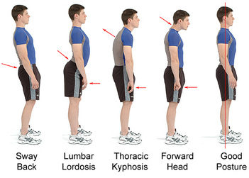 Best Position about Good Treatment to Improve Spinal Alignment in Stand Up Step