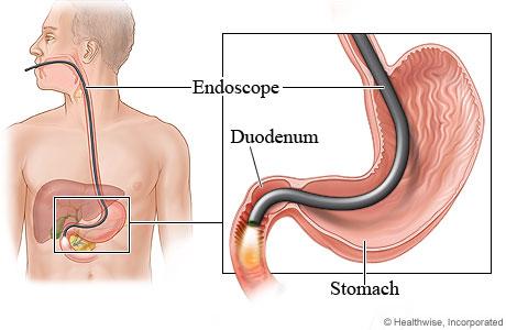 Cross Section of Endoscopy