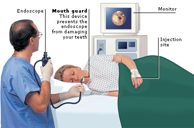 all you need to know about an endoscopy | all to health, Skeleton