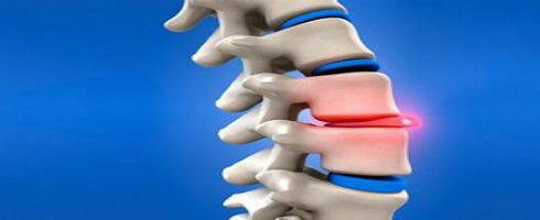 What Happens When You Have A Slipped Disc All To Health