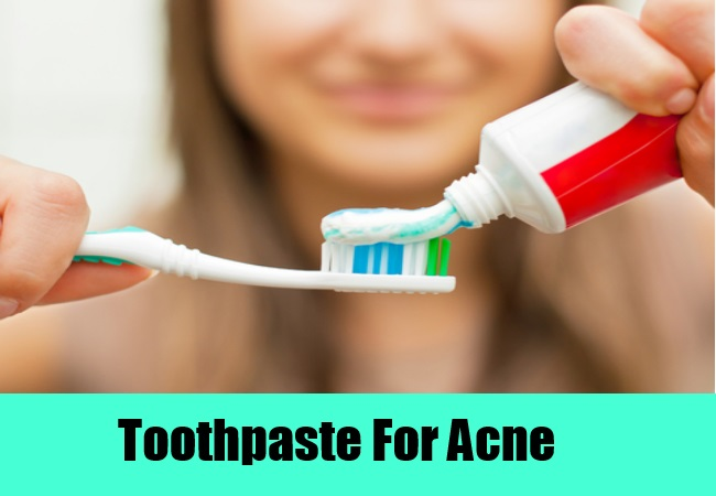 Alluring Natural Remedies For Cystic Acne using Toothpaste also Toothbrush for Face of Waman