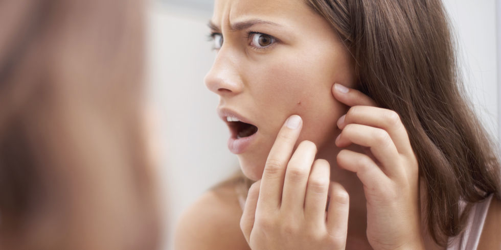 Bad Activity to Omit Acne from Face using hande and Good Food for Natural Remedies For Cystic Acne