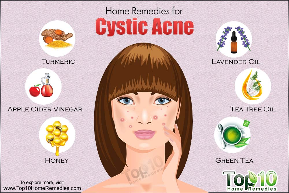 Best Natural Remenedies For Cystic Acne at Home using Apple Cider Vinegar also Turmeric and Others