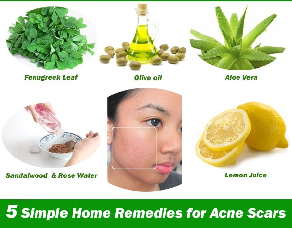 natural ways of curing pimples Natural home remedies for pimples show 36 ways  effective home remedies for pimples natural  this natural home remedy is not only beneficial in curing pimples.
