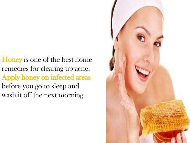 Lavish Food of Natural Home Remedies For Acne using Honey as Masker in the Night
