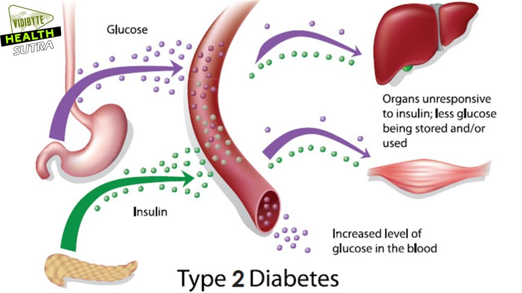 abnormalities in type 2 diabetes symptoms and type 1 diabetes, Skeleton