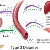 Beautiful Ways To Know Type 2 Diabetes Symtops From Increasing Level Of Glucose