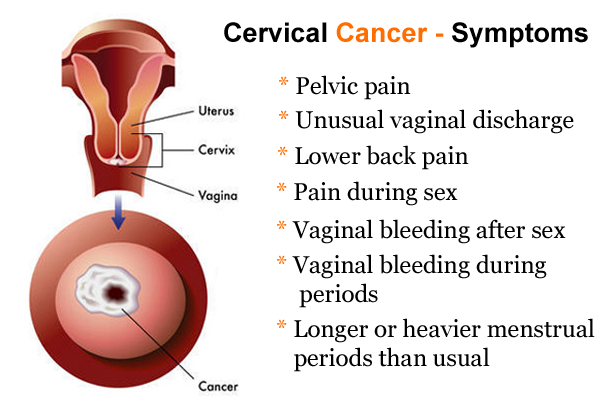 symptoms of cervical cancer for being aware of by women | all to, Skeleton