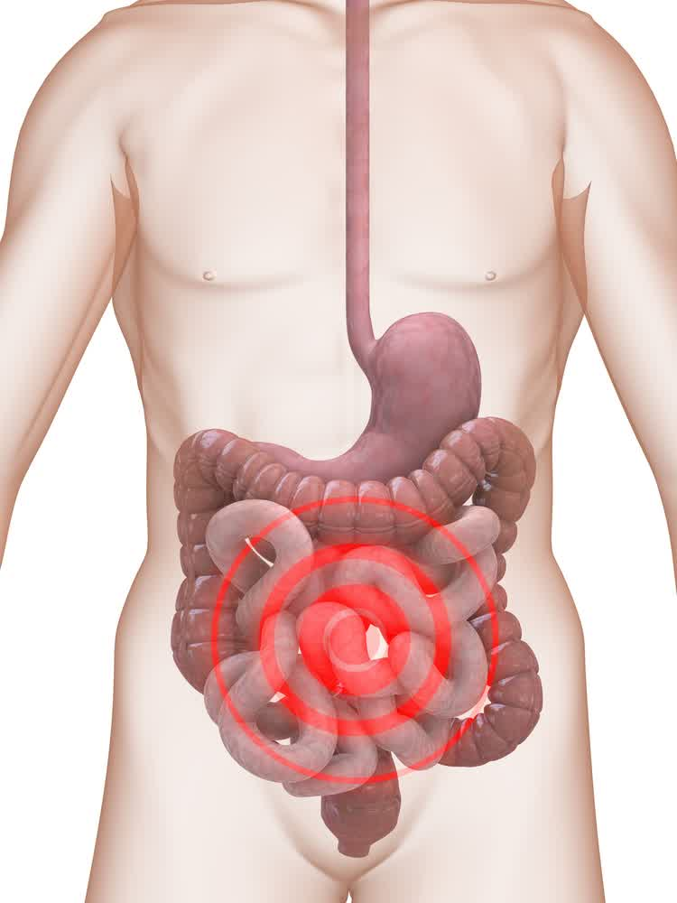 Diverculities Pain Areas Affected by Diverculities Symptoms and Early Signs in Human Stomach