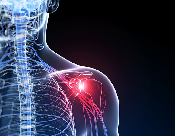 Frozen Shoulder illustrated in virtual image with red shoulder inflammatory