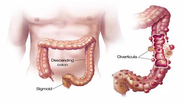 Graphic of Human Colon Related to Signs and Symptoms of Diverculities Disease