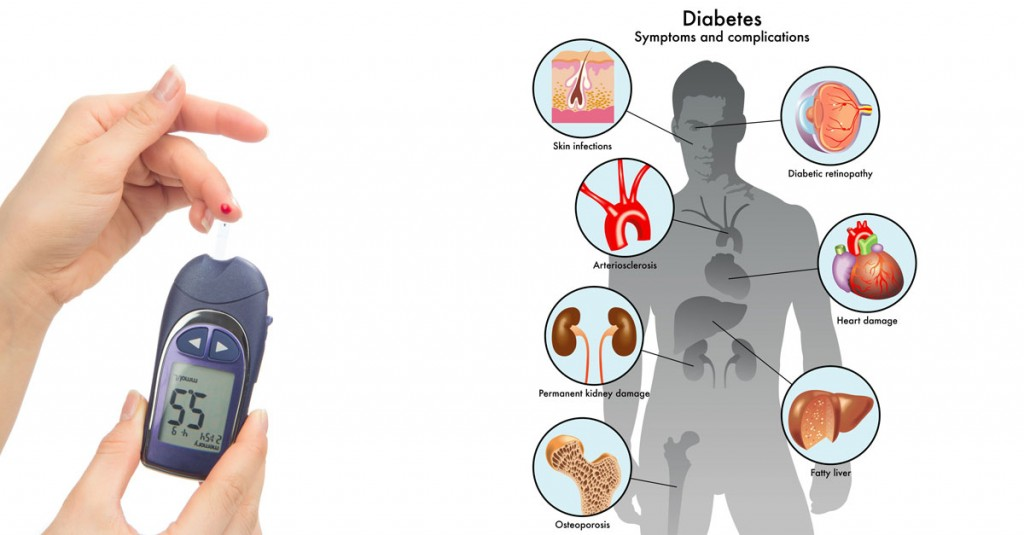 HUman Anatomy Showing the Diabeties Symptoms Location in HUman Body Parts