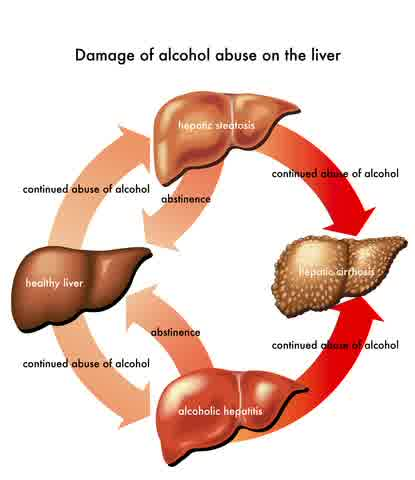 Infographic of cirrhosis in human liver Affected by alcohol abuse