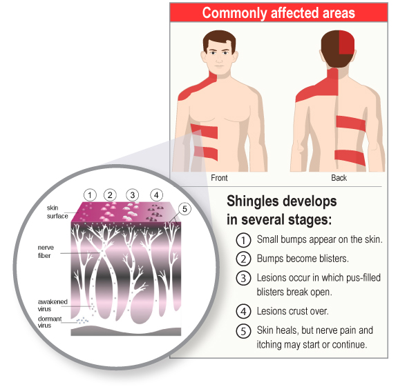 Shingles Caused by Varicella Zoster Commonly Affected Areas on Human Body