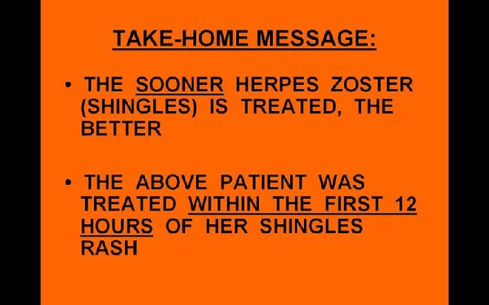 Take Home Message as Treatment of Shingles Symptoms Caused by Herpes Zoster Virus