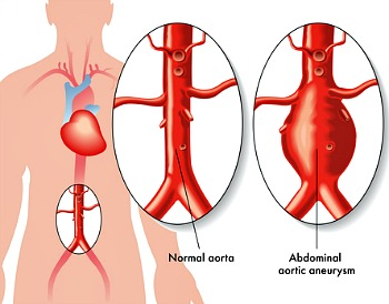 aorticaneurysm in abdominal in human body chart in normal and abnormal conditions