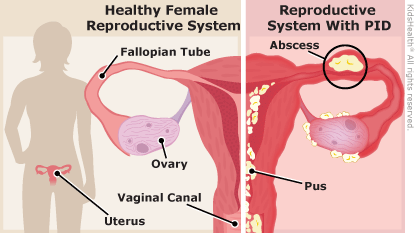 female reproductive organ with comparison of the healthy ones and wih teh PID