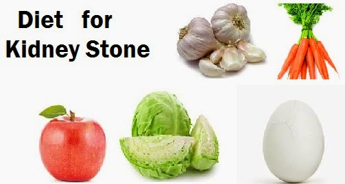 Identifying What Are The Symptoms Of Kidney Stones And