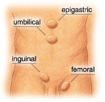 hernia types which are umbilical or epigastric followed by inguinal and femoral