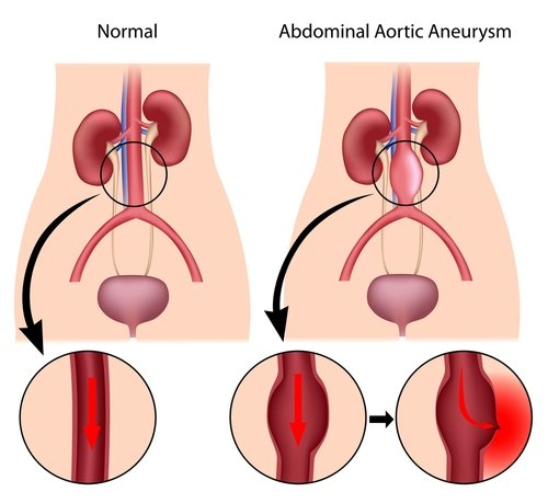normal vs abnormal aortic aneurysm happens in human inner stomach in graphic
