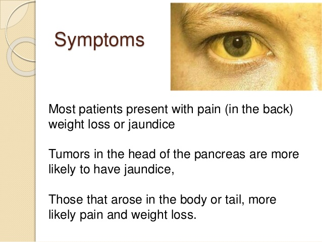 pancreas cancer symptoms of jaundice or yellowing process in mostly human eyes