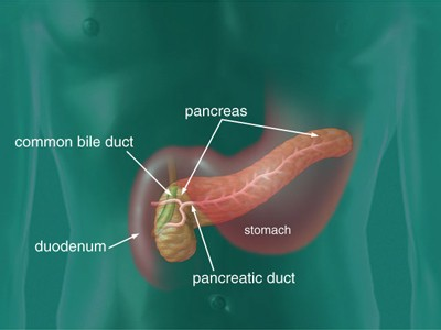 pancreatic duct affected by pancreatic cancer influencing the stool color becoming more pale