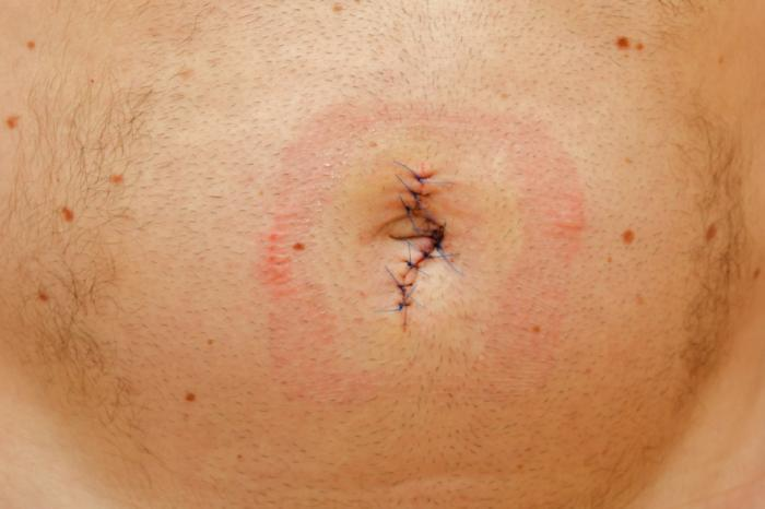 surgical treatment done in umbilical hernia on belly button