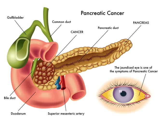 symptoms and causes of pancreatic symptoms in infographic with pancreas and eye image