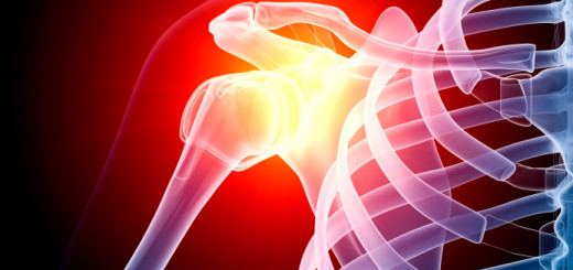 the chronic inflammatory shoulder part experienced by frozen shoulder patient