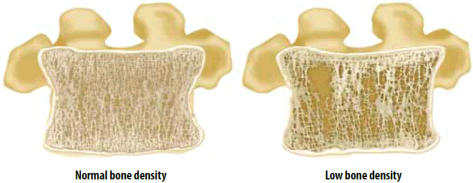 Bone Density Comparison