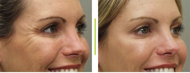Botox Wrinkle Reduction