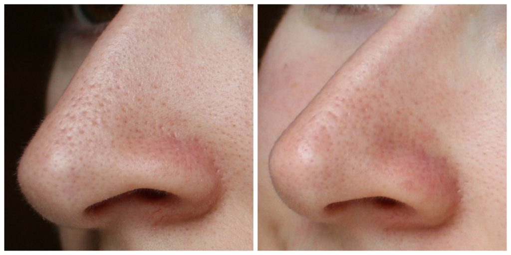 (2) Smaller Pores on Nose after Best Home Remedies to Get Rid of Blackheads Application in Daily Use
