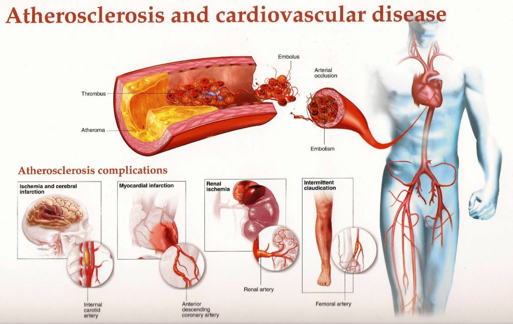 (2) Study more about Best Home Remedies for Clogged Arteries before these Several Complications on Artery