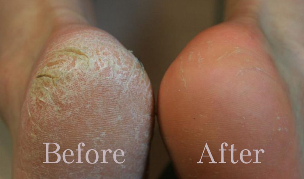 (3) Get a Smooth and Healthy Feet using Effective Home Remedies for Calluses using Flowers and Natural Ingredients
