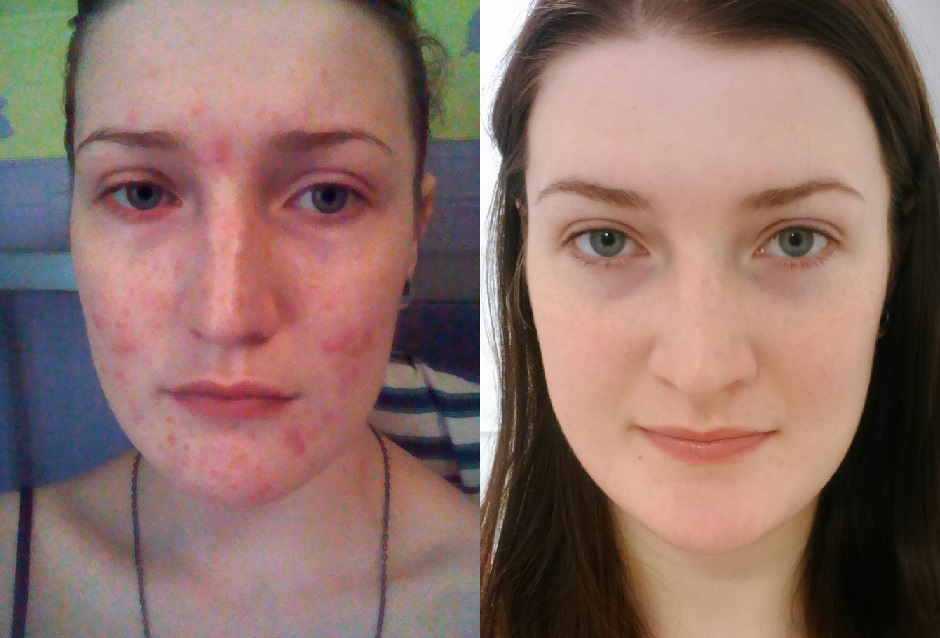 Spironolactone Weight Loss Acne Berry Blog