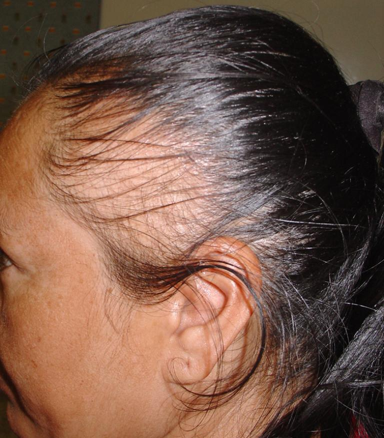 The Facts About Traction Alopecia All To Health